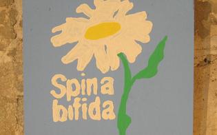 https://www.seguonews.it/spina-bifida-dal-18-al-20-novembre-specialista-tedesca-visita-pazienti-al-santelia-di-caltanissetta