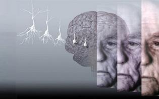 http://www.seguonews.it/alzheimer-i-sintomi-iniziali-e-le-tappe-della-malattia
