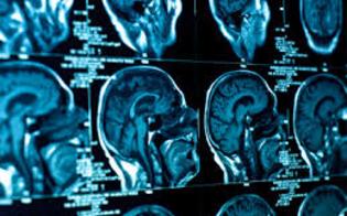 http://www.seguonews.it/venerdi-a-caltanissetta-la-decima-edizione-del-corso-di-neuroradiologia