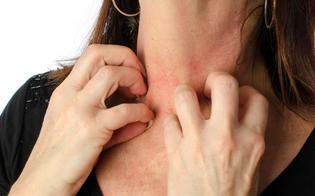 https://www.seguonews.it/allergica-anche-al-marito-diagnosi-choc-29enne-del-minnesota-costretta-vivere-reclusa