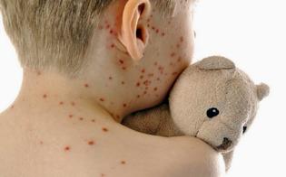 http://www.seguonews.it/ministero-della-salute-nel-2017-oltre-230-piu-casi-morbillo-dati-allarmanti