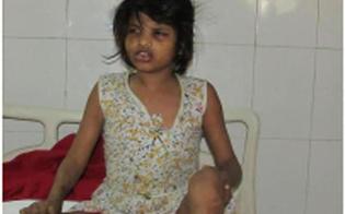 Scoperta choc in India: trovata bimba di 8 anni allevata dalle scimmie
