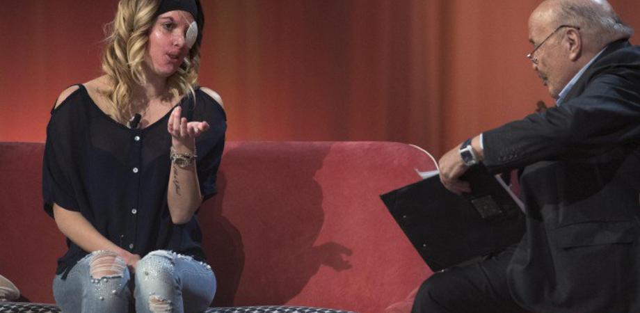 """La prima volta in tv dell'ex miss sfregiata con l'acido: """"ecco come mi ha ridotta"""""""