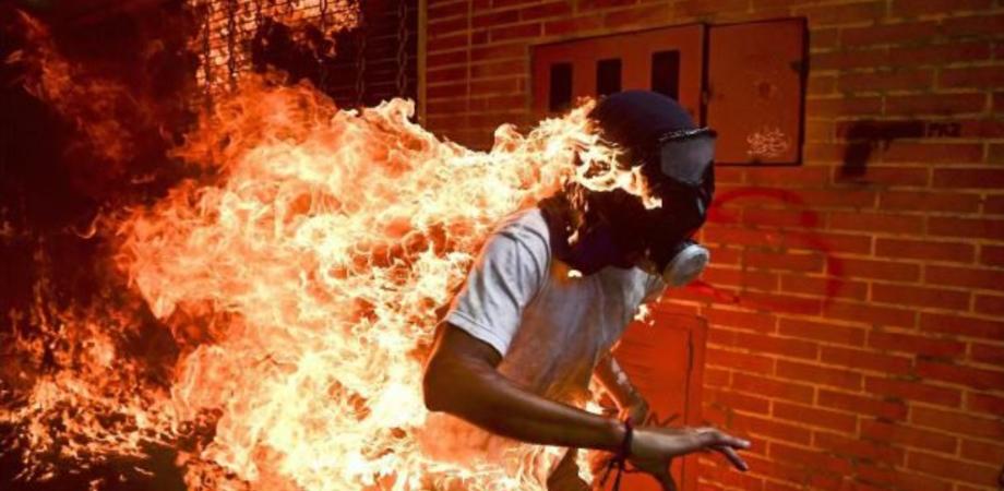 Ragazzo avvolto dalle fiamme, ecco la foto dell'anno