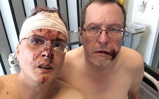 http://www.seguonews.it/picchiati-perch-gay-coppia-di-omosessuali-pubblica-le-foto-su-facebook