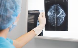 http://www.seguonews.it/tumore-al-seno-metastatico-la-scoperta-dei-ricercatori-napoletani-chemioterapia-si-puo-evitare