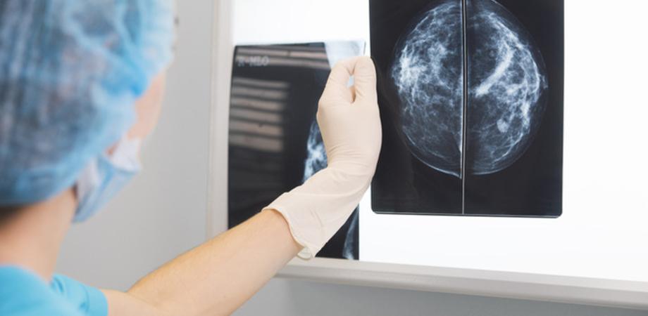 """Tumore al seno metastatico, la scoperta dei ricercatori napoletani: """"Chemioterapia si può evitare"""""""