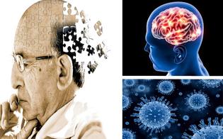 http://www.seguonews.it/caltanissetta-allhotel-san-michele-esperti-a-confronto-su-i-disturbi-neuropsichiatrici-nelle-demenze