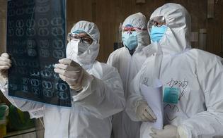 http://www.seguonews.it/coronavirus-per-i-guariti-polmoni-a-rischio-per-6-mesi-il-30-avra-problemi-cronici