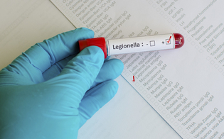 http://www.seguonews.it/a-siracusa-donna-muore-per-legionella-attivata-analisi-epidemiologica-dei-luoghi-frequentati