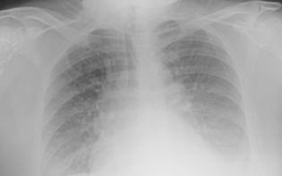 https://www.seguonews.it/studio-dellospedale-molinette-unecografia-del-polmone-puo-diagnosticare-il-covid-19
