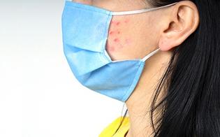 Acne, rosacea e dermatiti peggiorano con la mascherina: i consigli dei dermatologi
